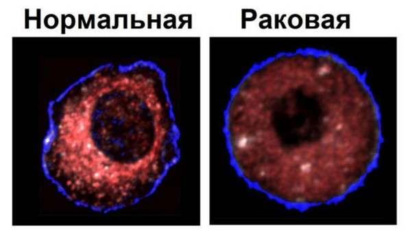 Разница раковой клетки и здоровой